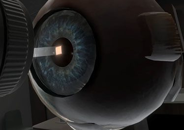 Uveitis VR Experience